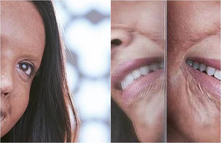 chhapaak first look poster, Deepika Padukone, chhapaak, first look poster of Deepika Padukone, Chhapaak actress Deepika Padukone, actress Deepika Padukone, Deepika Padukone Playing Acid attack survivor character, Deepika Padukone as malti IN CHHAPAAK, ENTERTAINMNET NEWS, bollywood news, television news, entertainment news